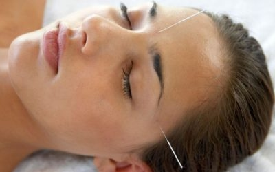 Dry Needling for Cervicogenic Headaches and Migraines